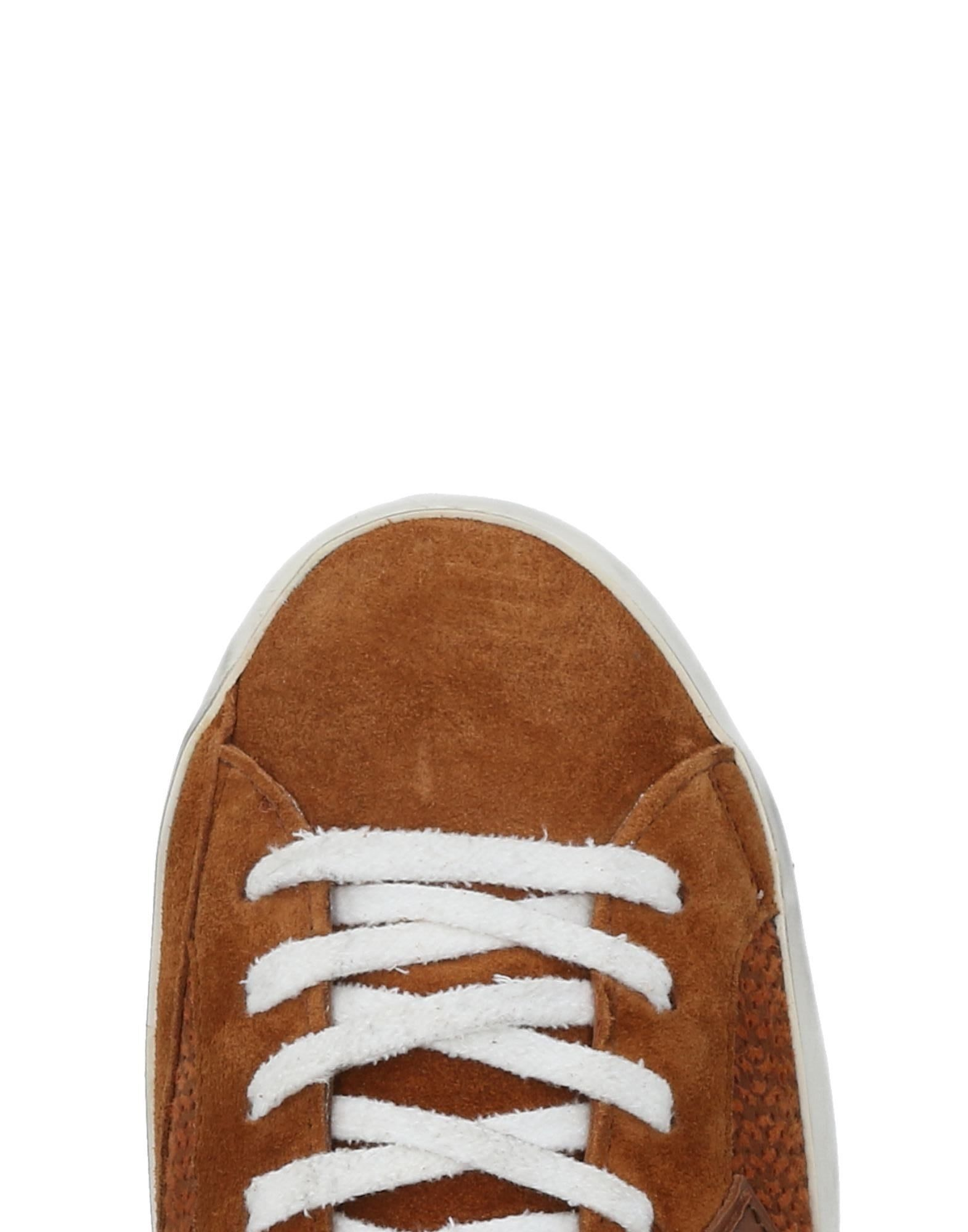 Philippe Model Sneakers Schuhe Herren  11479786TO Neue Schuhe Sneakers a955c4