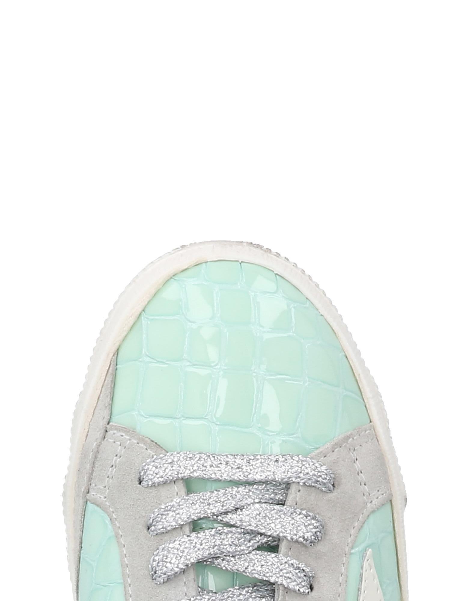 Golden Goose Deluxe Brand Sneakers Damen  11484437JP Heiße Schuhe
